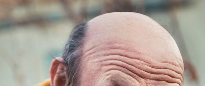 Do not want to baldness